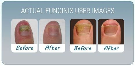 Top Ways How To Get Rid Of Toenail Fungus In Children & Adults